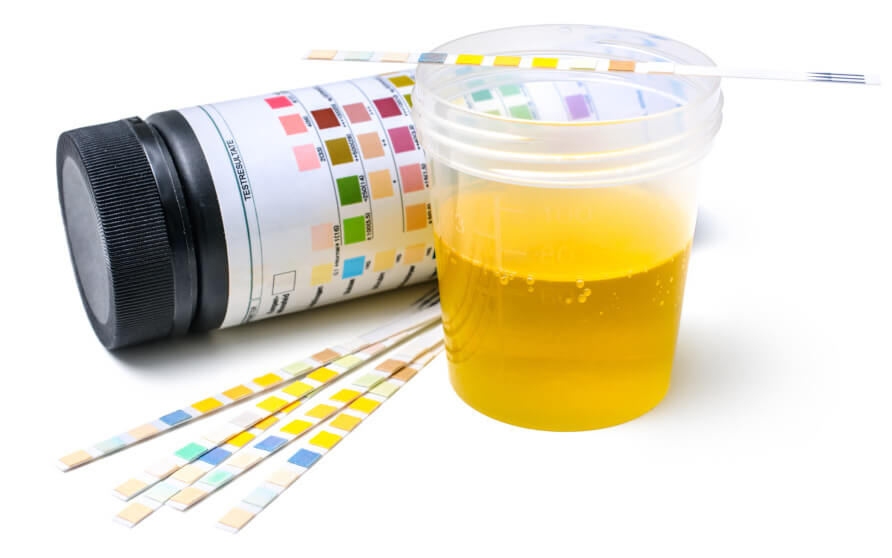 Does Synthetic Urine Work for Lab Tests?
