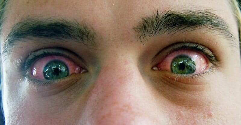 Why Does Cannabis Cause Red Eyes