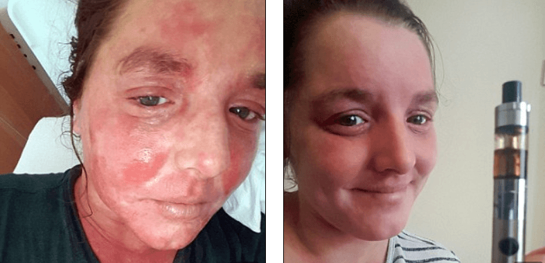Mother Says: Inhaling Cannabis Oil Cured My Agonising Eczema