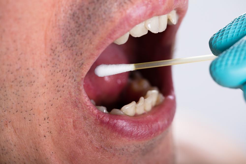 Mouth Swab Cannabis Drug Test